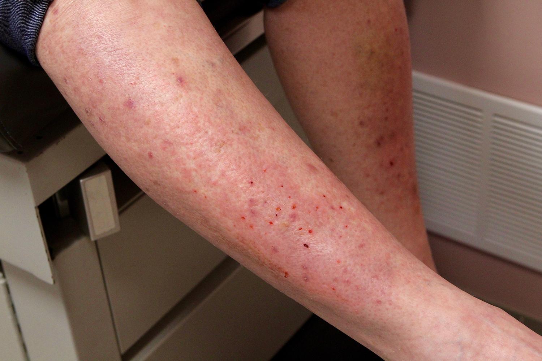 Dermatitis Herpetiformis | Gluten Intolerance Group